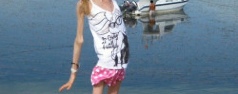 Aos 20 anos e muito magra, anoréxica vira celebridade na Rússia
