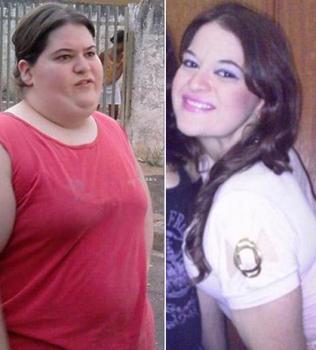 vc repórter: com dieta controversa, jovem de 1,50 m perde 62 kg